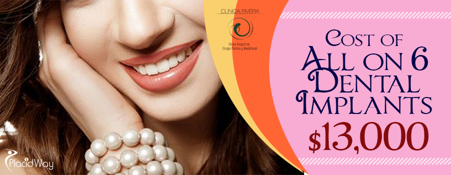 Cost of All on 6 Dental Implants in San Jose, Costa Rica