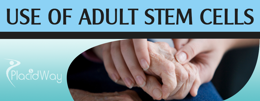 Uses of Adult Stem Cell Therapy