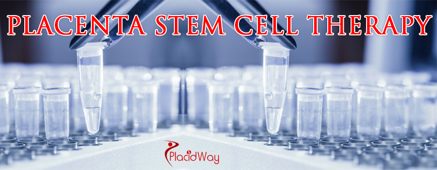 Placenta Stem Cell Therapy Abroad