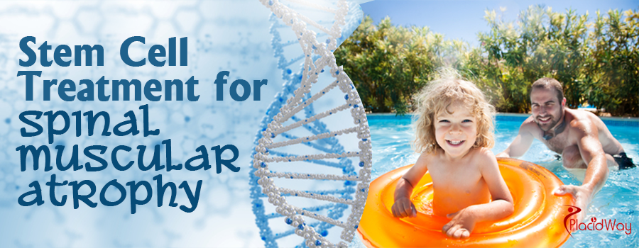 Stem Cell Treatment for Spinal Muscular Atrophy