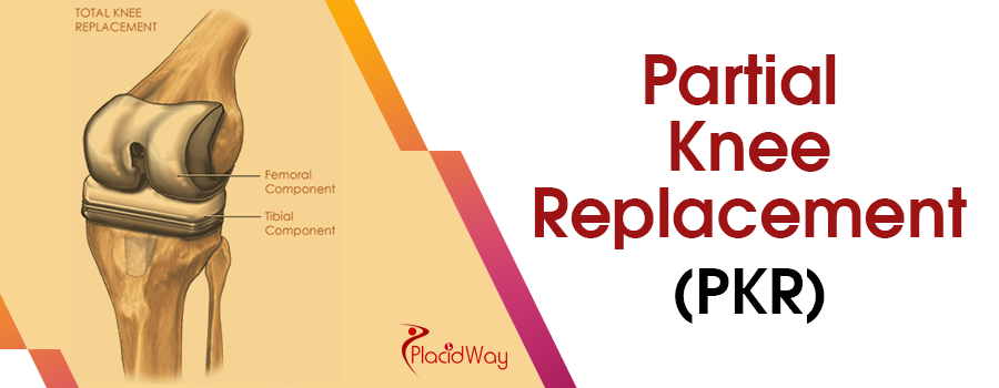 Partial Knee Replacement (PKR)