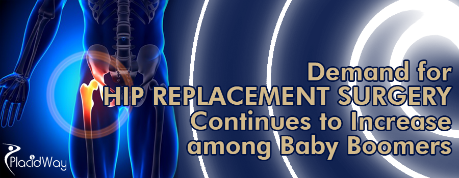Hip Replacement Surgery Rises Among Baby Boomers