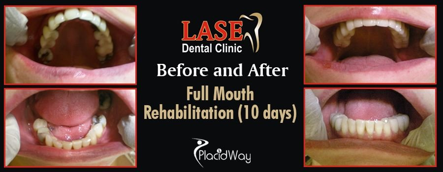 Before and After Full Mouth Rehabilitation in Mumbai, India