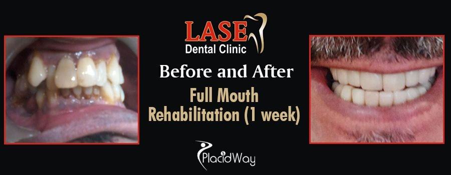 Before and After Dental Rehabilitation in Mumbai, India