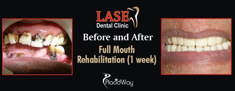Before and After Dental Implants in Mumbai, India