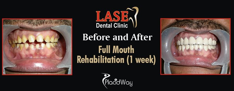 Before and After Dental Care in Mumbai, India