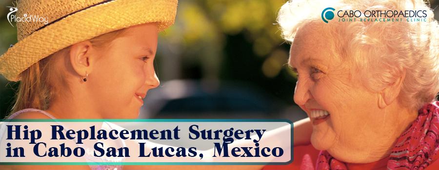 Hip Replacement Surgery in Cabo San Lucas, Mexico