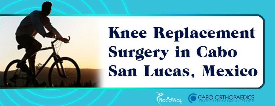 Knee Replacement Surgery in Cabo San Lucas, Mexico
