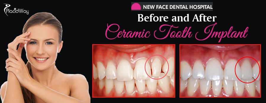 Before and After Ceramic Tooth Implant South Korea