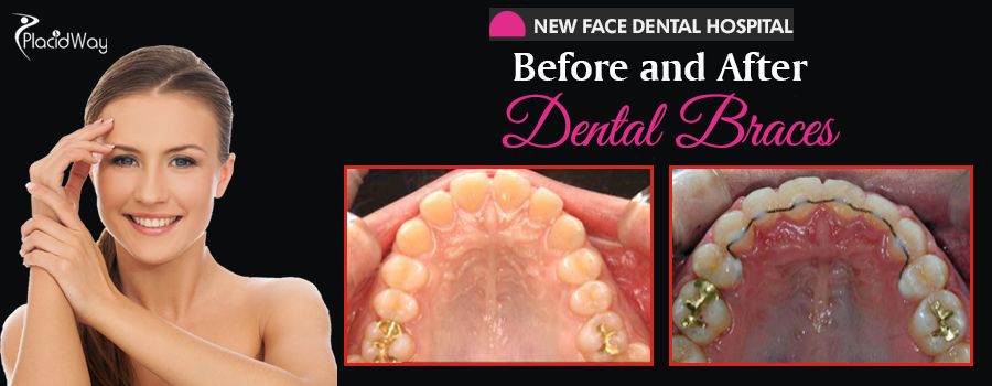 Befor and After Dental Braces in Seoul, South Korea
