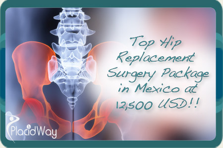 Affordable Hip Replacement Surgery Package at Mexicali, Mexico