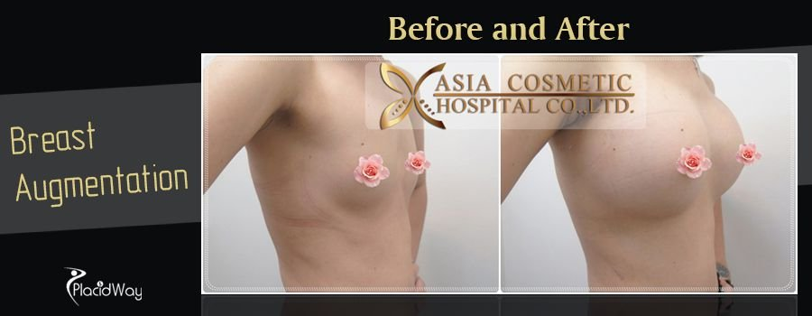 Before and After Pictures Breast Augmentation in Thailand