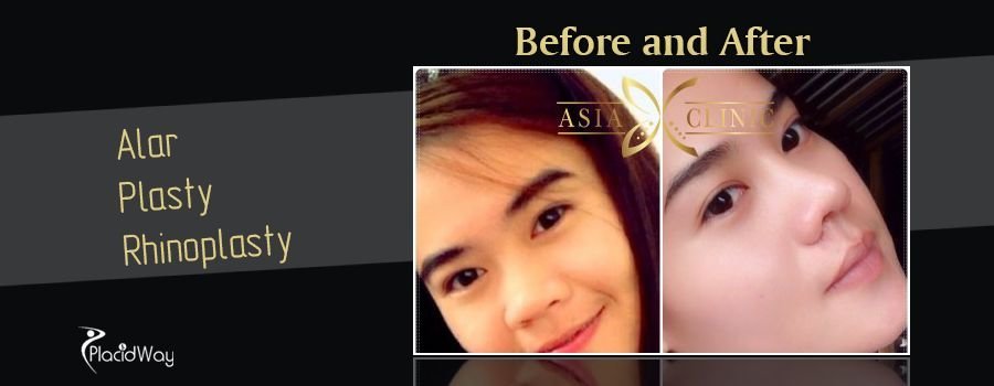 Before and After Images Nose Surgery Thailand