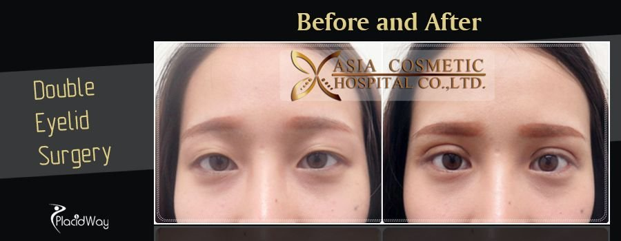 Before and After Double Eyelid Surgery in Thailand