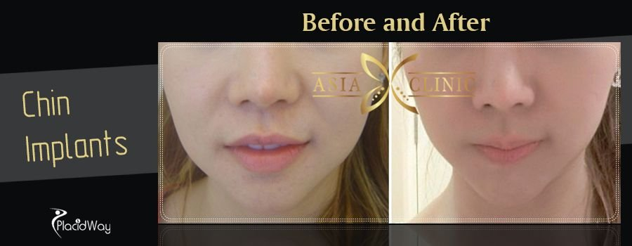 Before and After Chin Implants in Thailand