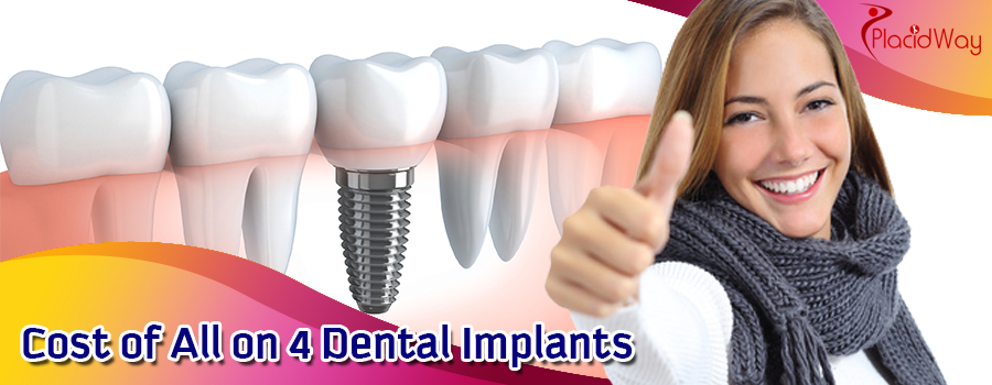 Cost of All on 4 Dental Implants in Los Algodones, Mexico