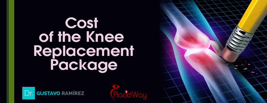Cost of Knee Replacement Package in Mexico