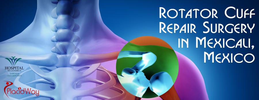 Rotator Cuff Repair Surgery in Mexicali, Mexico