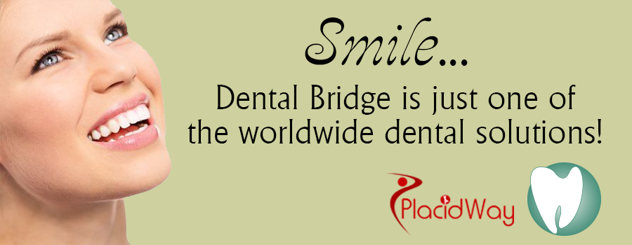 Dental Bridges Abroad Image