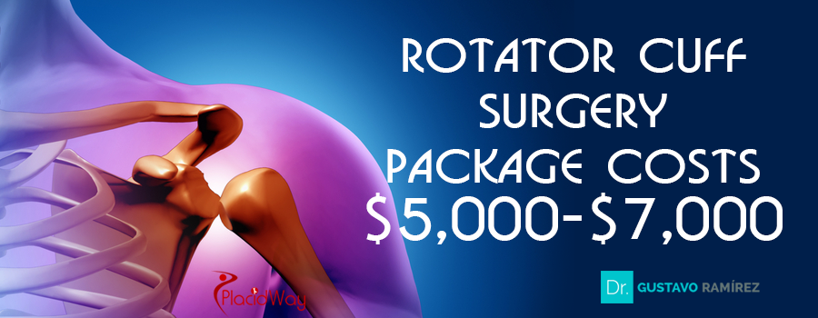 Price Package of Rotator Cuff Surgery in Jalisco, Mexico