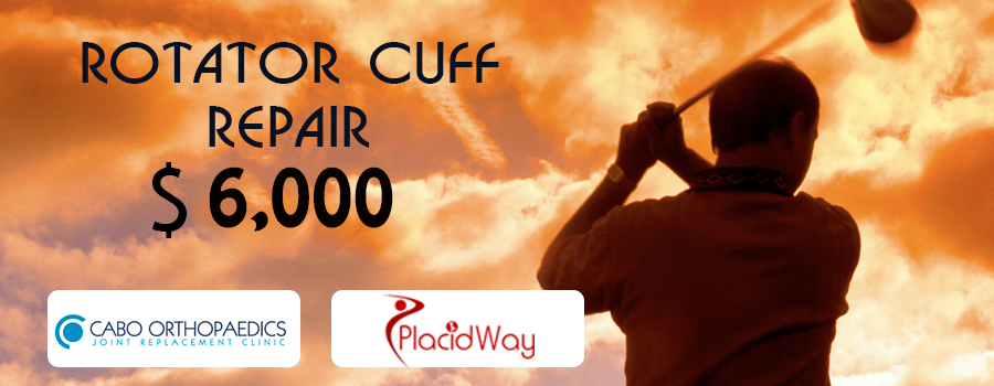 Price Package Rotator Cuff Repair in Cabo San Lucas, Mexico