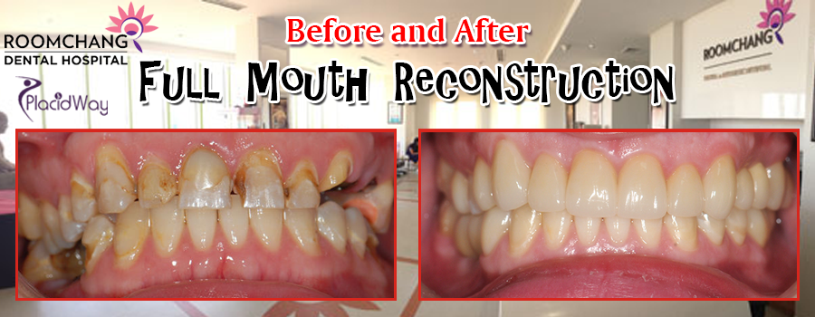 Before and After Full Mouth Reconstruction in Phnom Penh, Cambodia