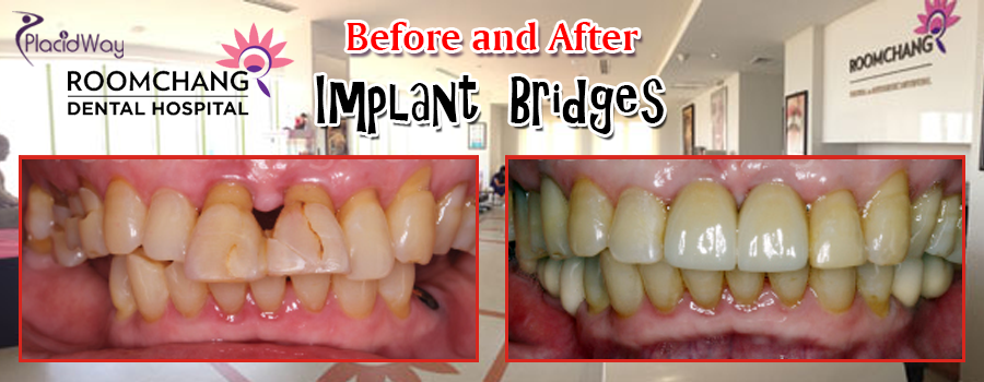 Before and After Dental Implants Bridge in Roomchang Dental Hospital in Cambodia