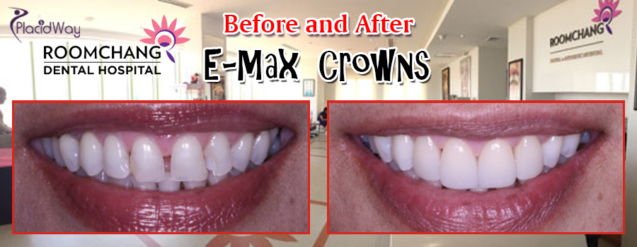E-Max Crowns in Cambodia Before and After Pictures