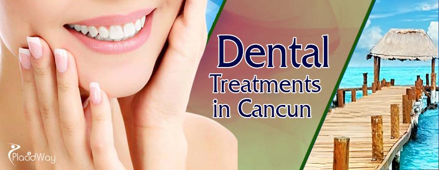 Dental Treatments in Cancun