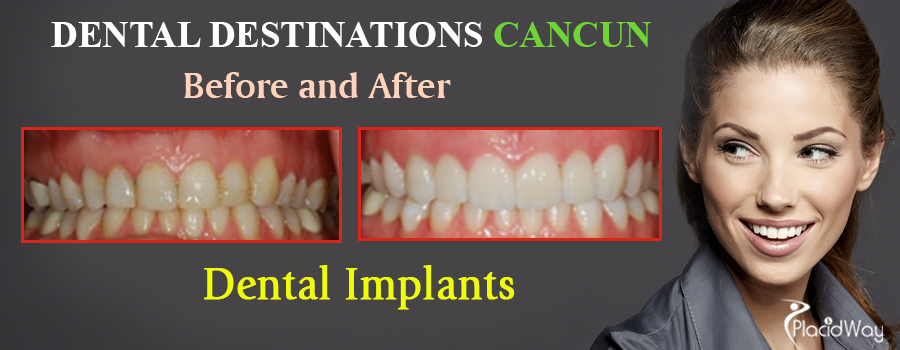 Before and After Dental Implants in Mexico