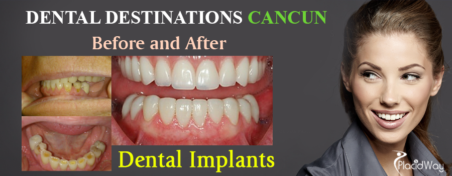 Before and After Images of Dental Implants in Cancun, Mexico
