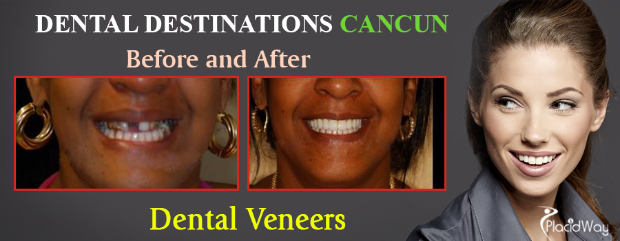 Before and After Dental Veneers in Mexico
