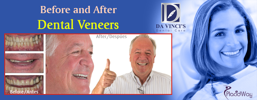 Before and After Dental Veneers in Costa Rica