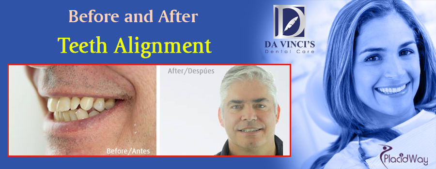 Before and After Teeth Alignment in Costa Rica