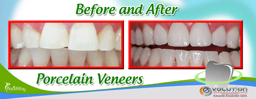 Dental Veneers Before and After Results in Mexico at Evolution Implant Center