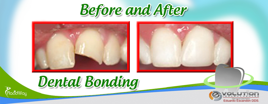 Dental Bonding Before and After Results in Mexico at Evolution Implant Center