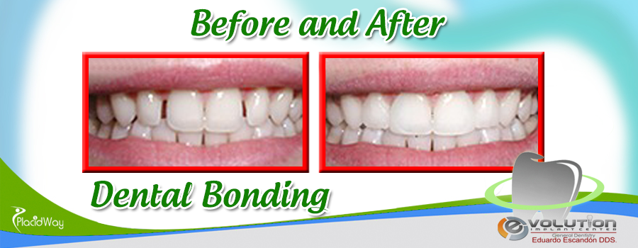Before and After Dental Bonding at Evolution Implant Center, Mexico