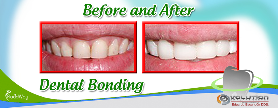 Dental Bonding Image Before and After in Los Algodones, Mexico
