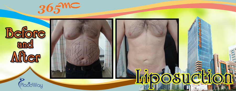 Before and After Liposuction Surgery in South Korea