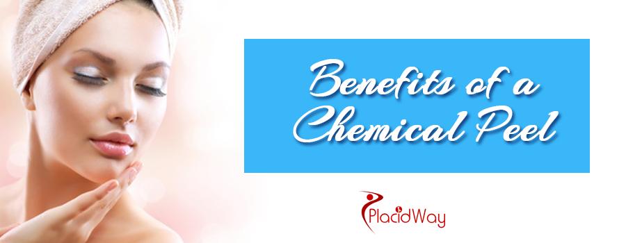 Benefits of Chemical Peel