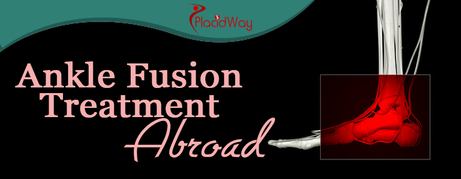 Ankle Fusion Treatment Abroad