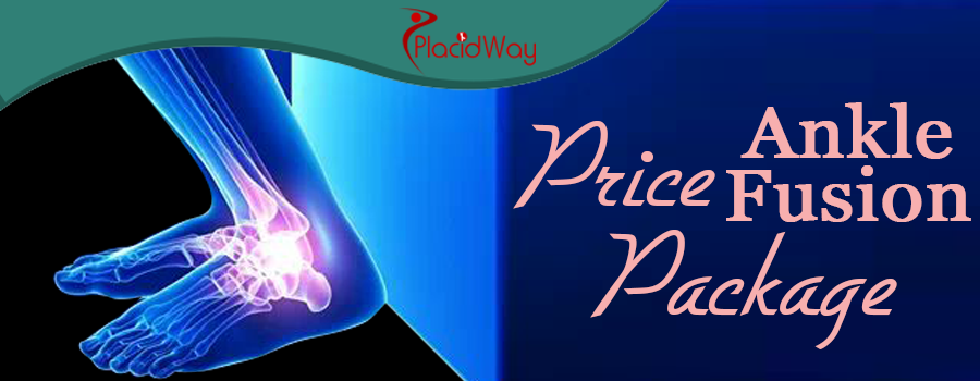 Price Package Ankle Fusion Surgery