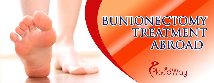 Bunionectomy Treatment Abroad