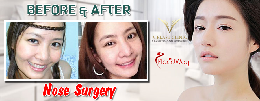 Before and After Nose Surgery Pattaya Thailand