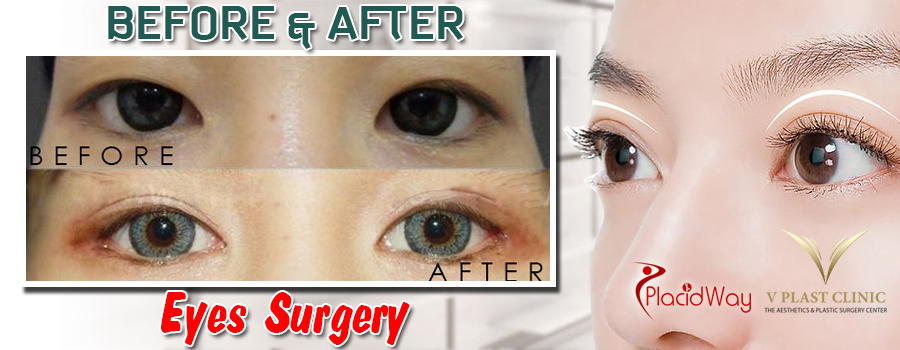 Before and After Double Eyelid Surgery in Pattaya Thailand
