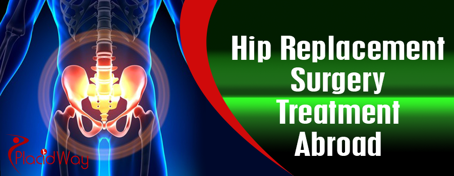 Hip Replacement Surgery Treatment Abroad