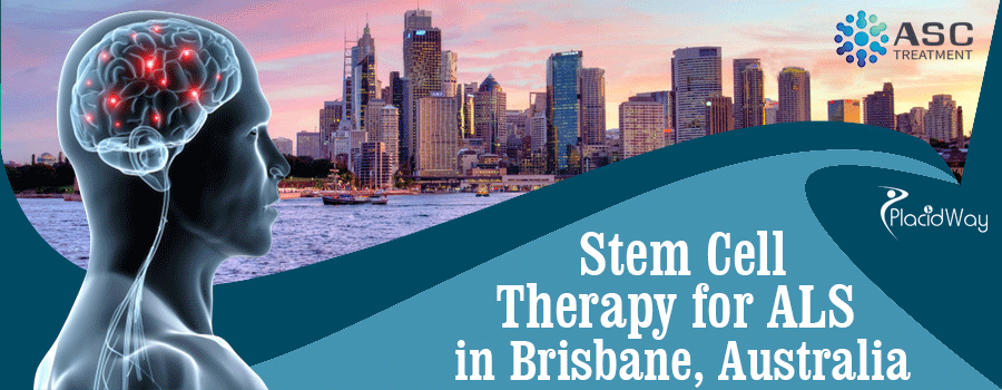 Stem Cell Therapy for ALS in Brisbane Australia