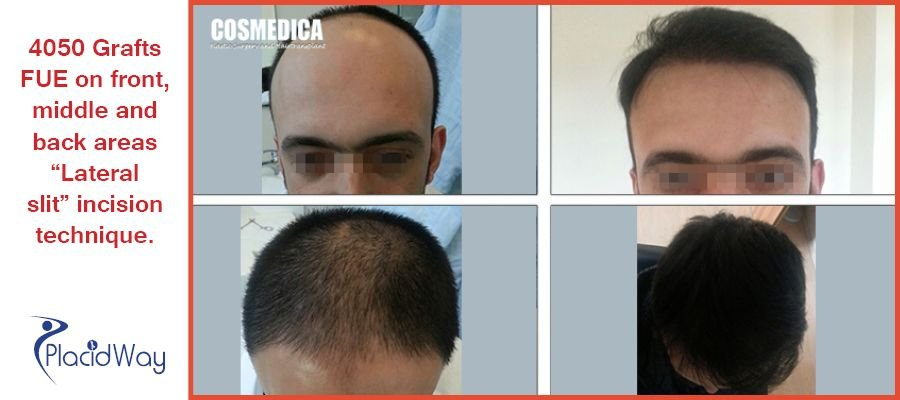Before and After Images of Hair Transplant in Istanbul, Turkey