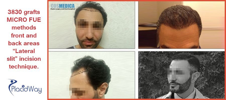 Before and After Images of FUE Procedure in Istanbul, Turkey