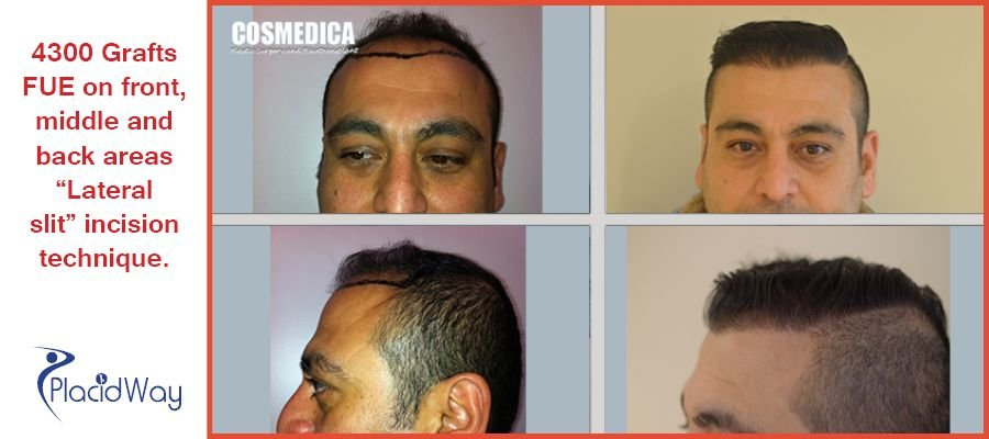 Before and After Hair Transplantation Procedure in Istanbul, Turkey
